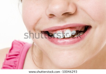 small girl toothless smile  close up - stock photo