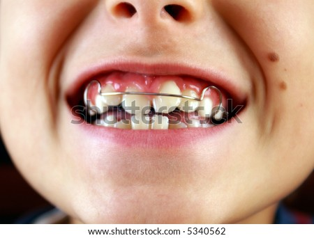 smile with braces on teeth - stock photo