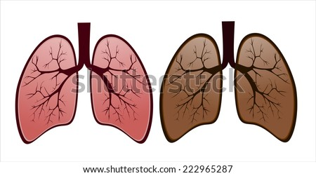 Smoker's lung versus healthy lung - stock photo