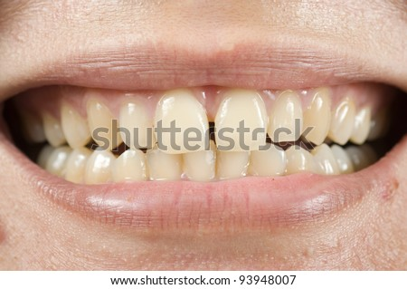 Spacing teeth oral problem, photo for teeth problem - stock photo