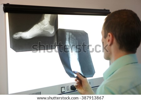 specialist  watching images of foot at  x-ray film viewer - stock photo
