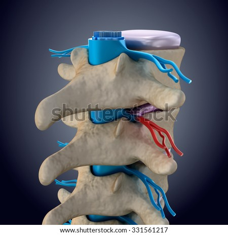 Spinal cord under pressure of bulging disc - stock photo