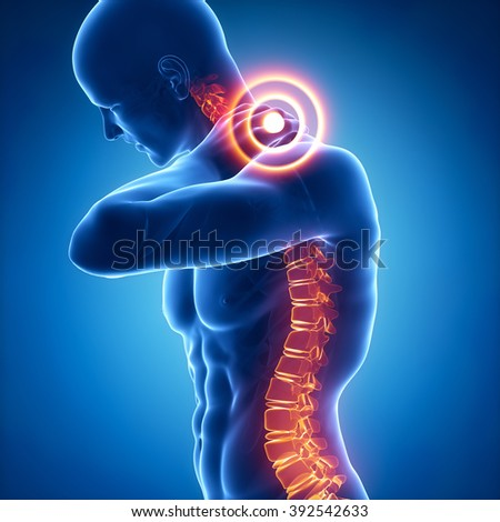 Spine injury pain in sacral and cervical region concept - stock photo