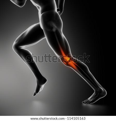 Sports knee injury x-ray concept - stock photo