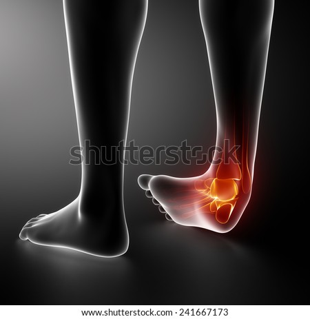 Sprained ankle black x-ray - stock photo