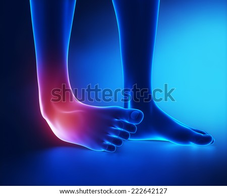 Sprained ankle blue x-ray - stock photo