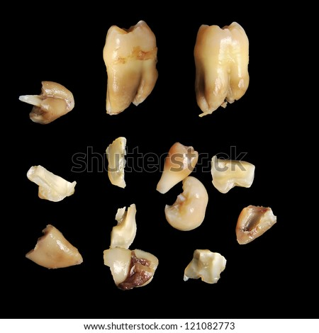 Spread out pulled teeth and fragments on black background - stock photo