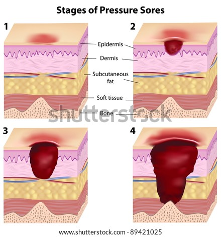 Stages of pressure sores - stock photo
