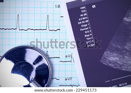 Stethoscope and medical documents. close-up photo - stock photo