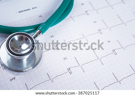 Stethoscope on an electrocardiogram (ECG) chart background - stock photo