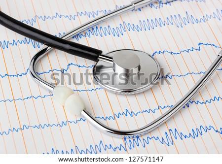 Stethoscope on ecg - medical background - stock photo