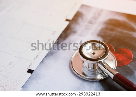 Stethoscope on X-ray paper report, medical Concept  - stock photo