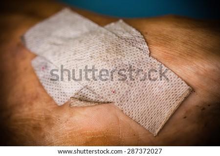 Sticking plaster on a skin - stock photo