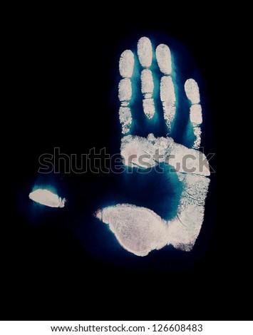 Straight hand chemogram - stock photo