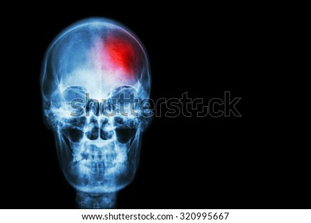 Stroke ( Cerebrovascular accident ) . film x-ray skull of human with red area ( Medical , Science and Healthcare concept and background ) - stock photo