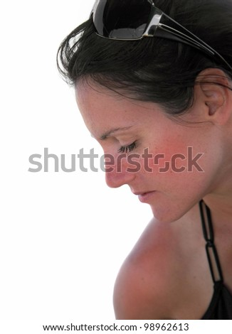 Sunburn: closeup of a young woman  with  a bad sunburn. Focus around the eye. - stock photo