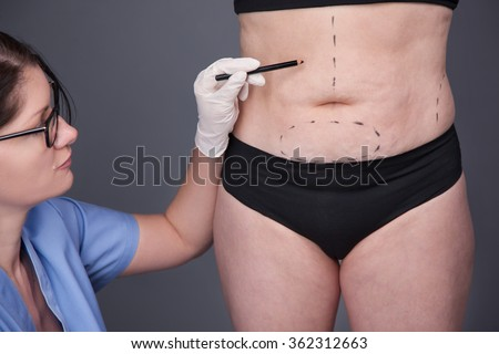 Surgeon, liposuction, body.Cellulite, stretching.Overweight, obesity, fat woman, fat belly, hips and excess weight - stock photo