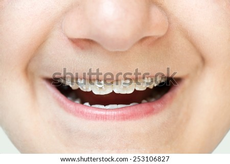 Teenage boy showing his braces - stock photo
