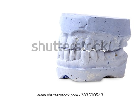 teeth mold  isolated on white background - stock photo