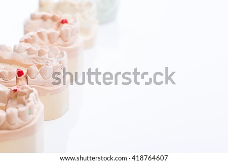 Teeth molds on a bright white surface - stock photo