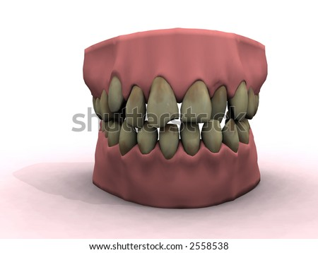 teeth show bad decay and ugly coloring - stock photo