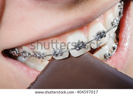 Teeth with dental braces biting chocolate. Orthodontic Treatment. Dental care Concept. Extreme macro. Healthy white teeth - stock photo
