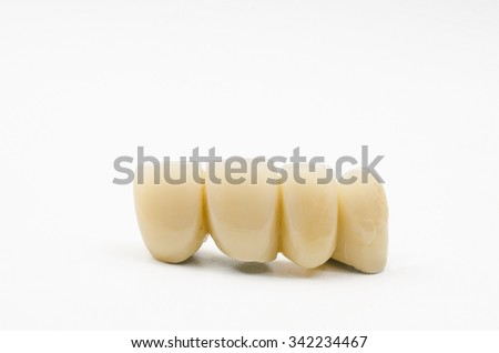 temporary bridge, acrylic resin veneers - stock photo