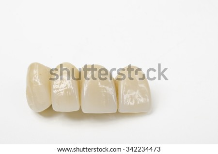 temporary bridge, resin veneers - stock photo