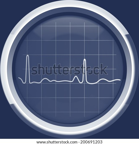 The cardiogram on the screen of a retro cardiomonitor in blue tones, background - stock photo