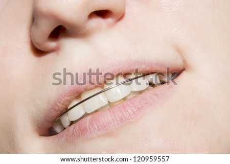 the girl smiling with braces on teeth - stock photo