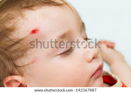 The little baby is sleeping with a wound on his forehead - stock photo