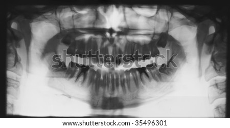The medical shot of a human teeth - stock photo