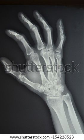 The palm of your hand, left oblique position X-ray - stock photo