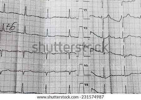The tape with the cardiogram - stock photo