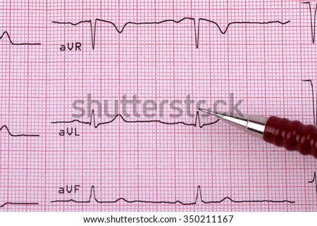The tape with the cardiogram on the pink grid. - stock photo