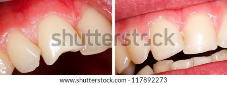 The treatment of a fractured tooth (incisor) - part of Beforeafter series. - stock photo