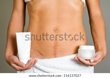 The way to healing the scar - stock photo