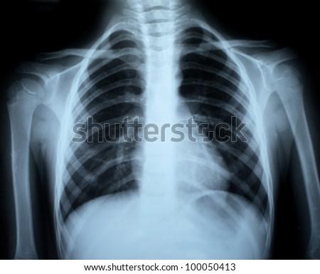 the xray photo of a human bones - stock photo