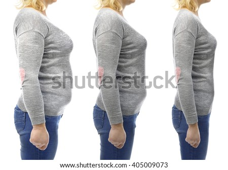 Three stages of slimming woman's body - stock photo