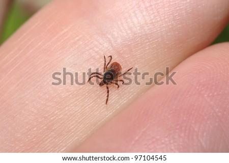 Tick crawling on human finger - stock photo