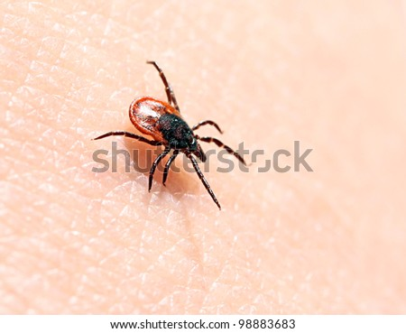 Ticks on human skin. Ixodes ricinus can transmit both bacterial and viral pathogens such as the causative agents of Lyme disease and tick-borne encephalitis. - stock photo