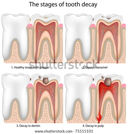 Tooth decay - stock photo