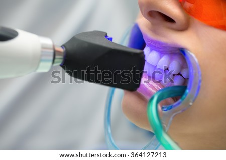 Tooth filling ultraviolet lamp - stock photo