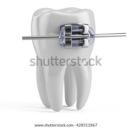 Tooth with braces isolated on white. Health, medical, tooth doctor, dental clinic or dentist symbol. 3d render - stock photo