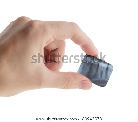Tooth x-ray in the hand isolated on white.  - stock photo
