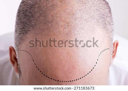 Top view of a men's head with a receding hair line - stock photo