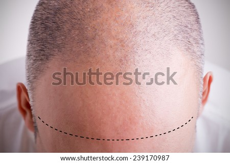 Top view of a men's head with a receding hair line with a marked hairline - stock photo