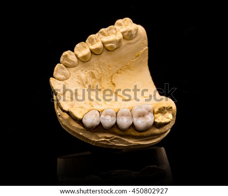 Top view of artificial teeth on black background - stock photo