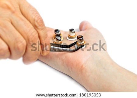 Traditional oriental acupuncture treatment (moxibustion) in progress - stock photo