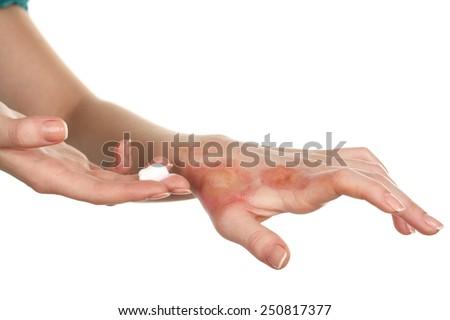 Treatment of burns on female hand isolated on white - stock photo